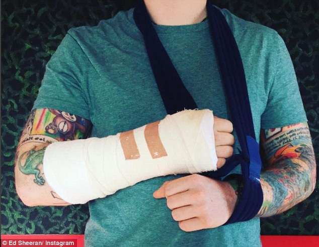 Ed Sheeran Posts About His Broken Arm