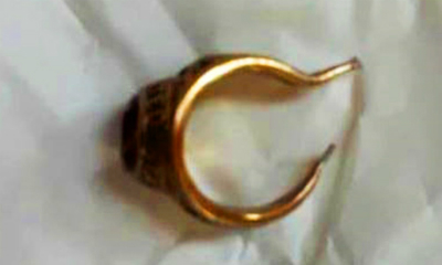 Doctors Use Pliers to Remove Gold Ring from Man's Penis