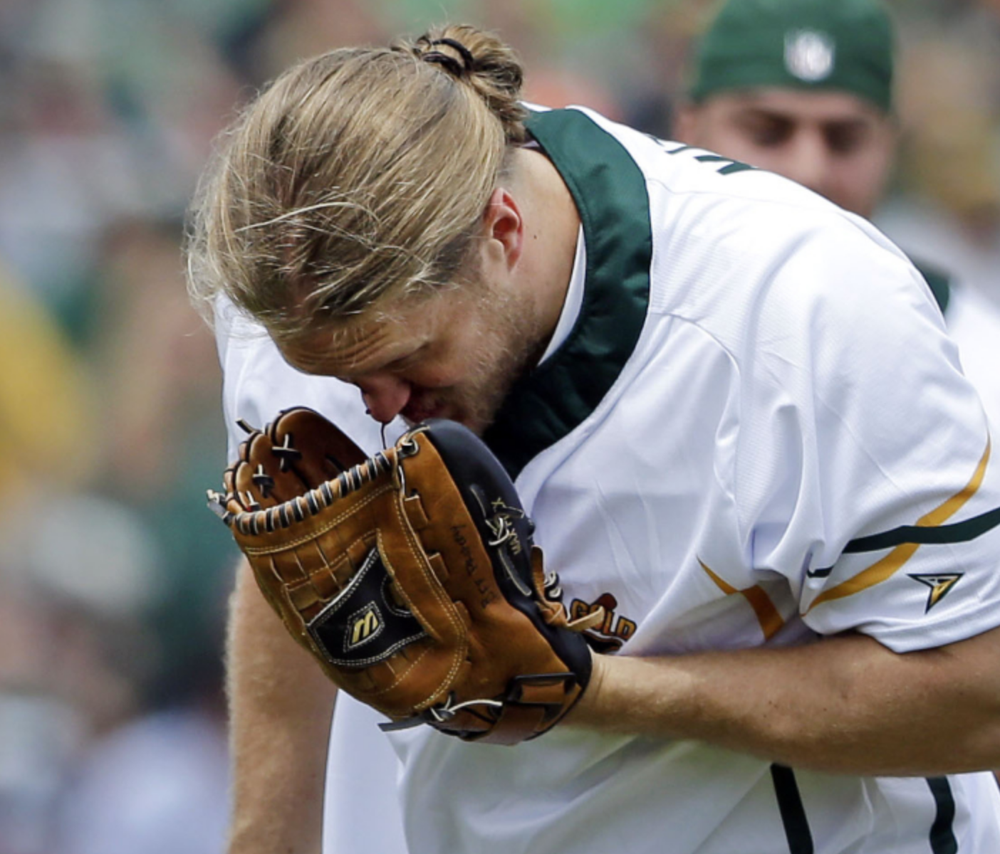 Packers' Clay Matthews Says He'll Need Surgery After Taking Softball to the Face at Charity Game