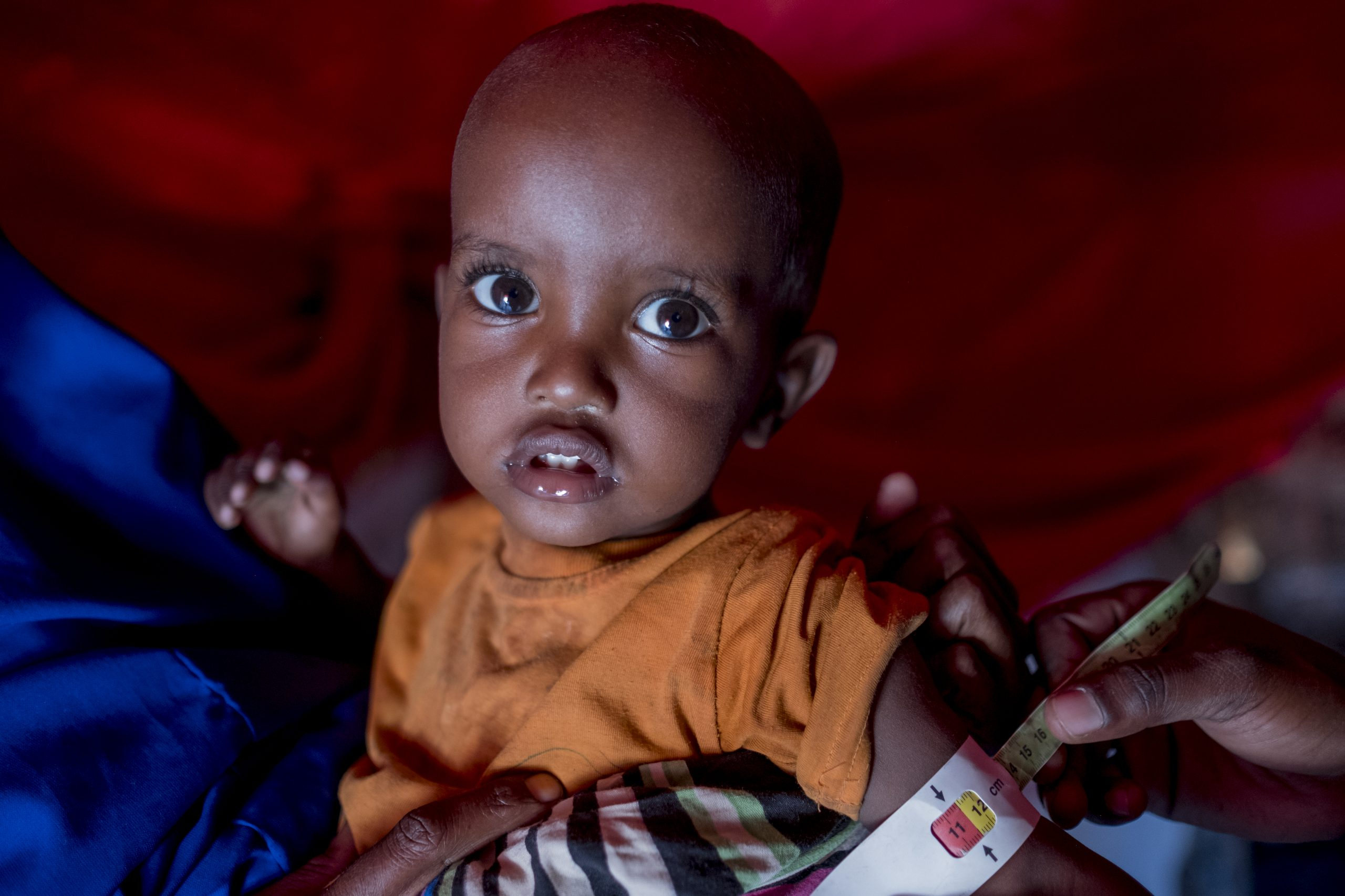Children in Somalia Need Our Help