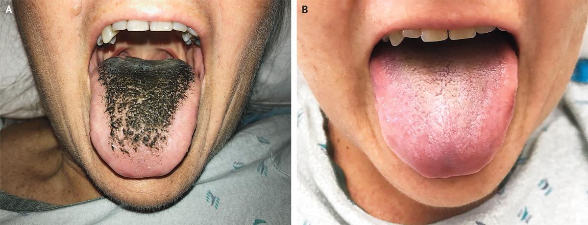 Cat Got Your Tongue? [PIC]