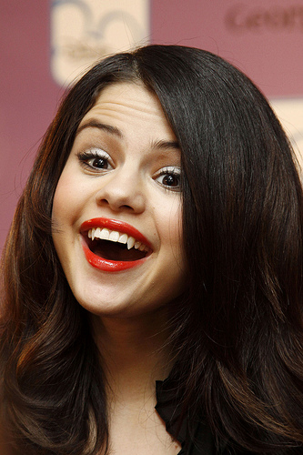 Selena Gomez suffered near-fatal complication after kidney transplant!