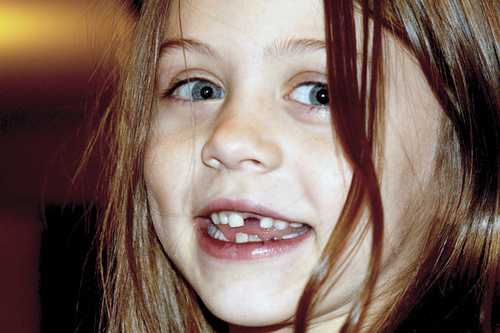 Is the Tooth Fairy Paying Less?