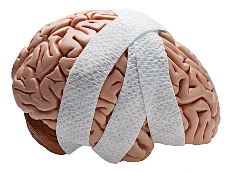 Acquired Brain Injuries: What You Didn't Know