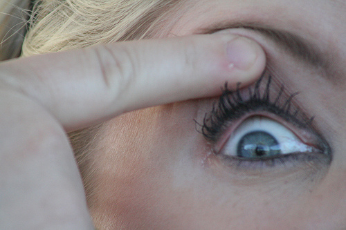 FORE!!!!! Woman's Eyeball Explodes After Being Hit In The Eye At The Ryder Cup