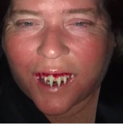 A Woman From Alabama Called A Dentist.....To Remove Halloween Teeth
