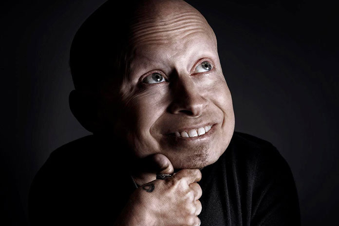 'Austin Powers' Actor Verne Troyer, Dead At 49