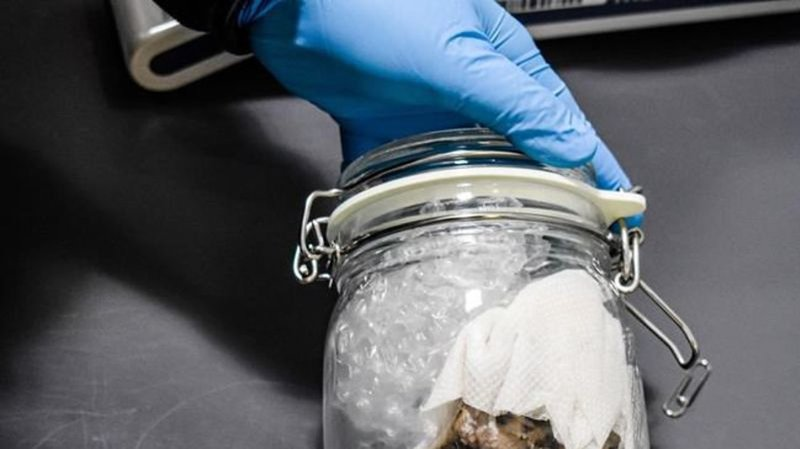 U.S. border officers seize human brain shipped from Toronto