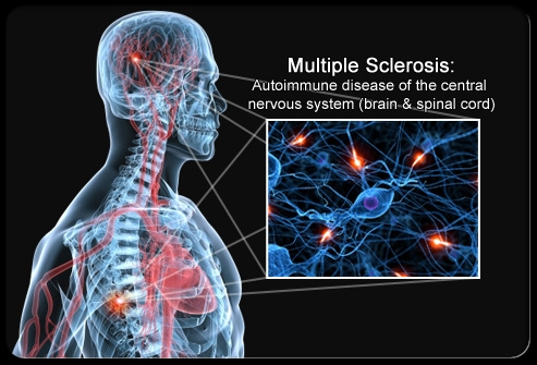 Multiple Sclerosis a highlight at Neuroscience Research Symposium in Saskatoon