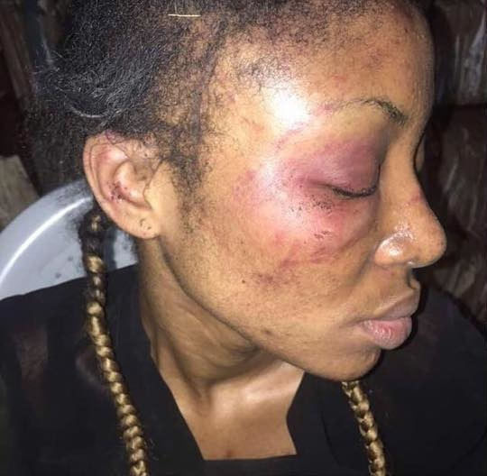 Woman accused of witchcraft beaten to coma by in-laws