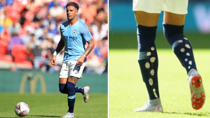 Why Kyle Walker Has Holes Cut In His Socks