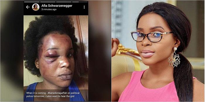 Photo: Benedicta Gaffah brutally Beaten by a Married Man