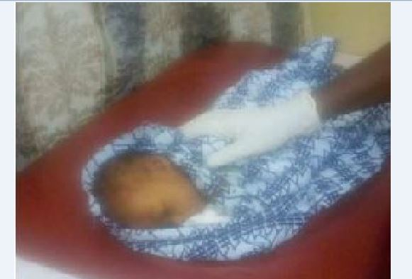 Baby buried alive rescued at Elmina