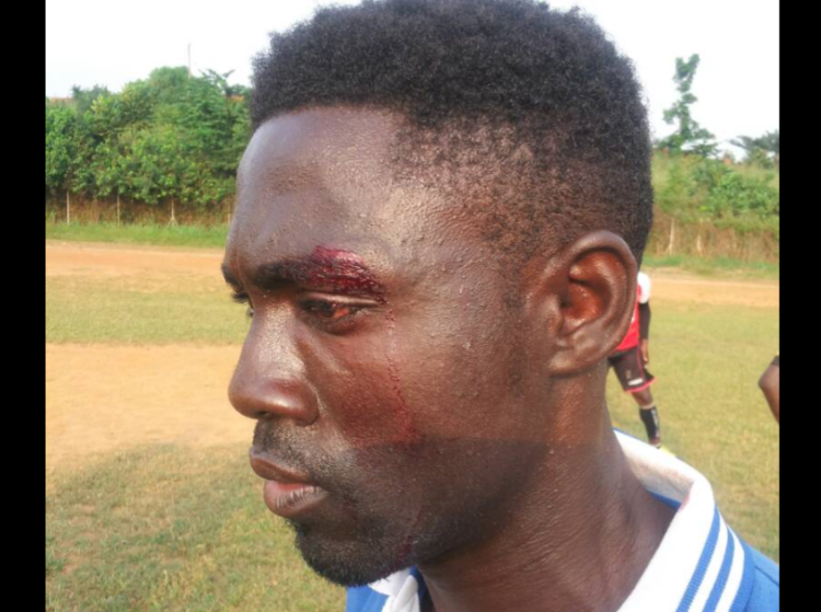 PHOTOS: Young Wise FC players beaten, bitten by Koyoku Royals players and supporters