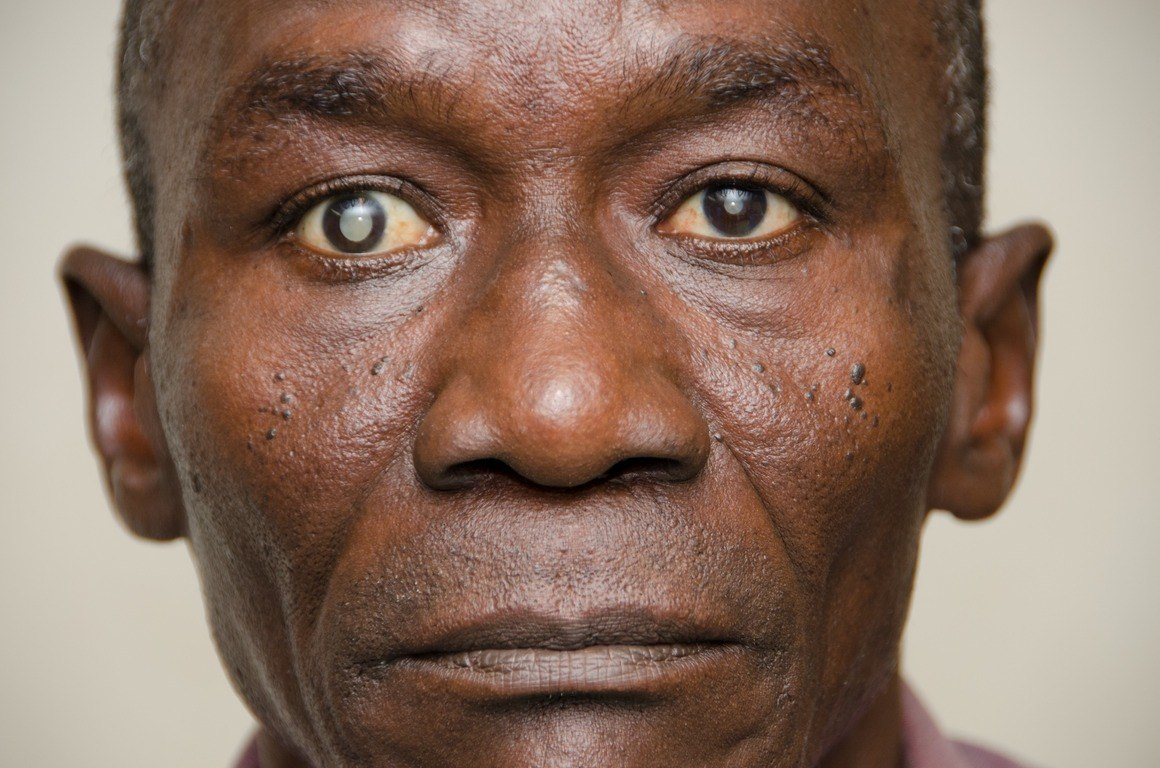 Cataract, leading cause of blindness in Ghana