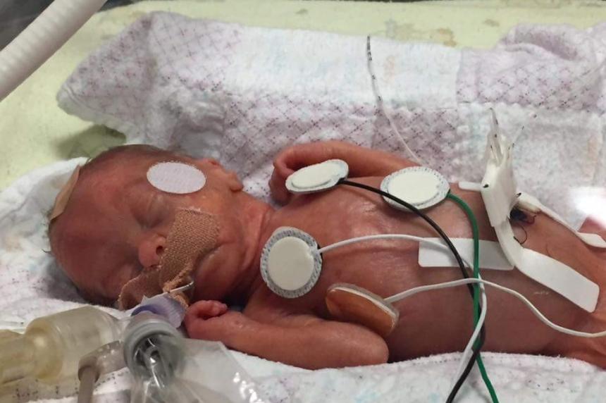 'It means everything:' Z99 Radiothon family celebrates premature baby's 1st birthday