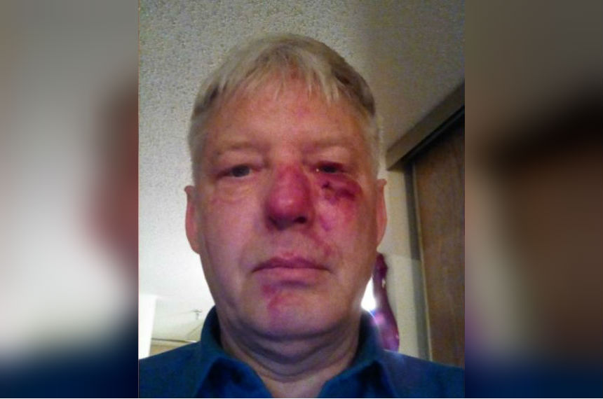 Prince Albert couple beaten outside community hall