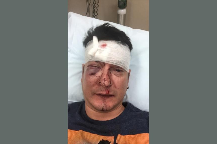 Beaten, but not defeated: Gay Saskatoon man posts photos of brutal bar attack