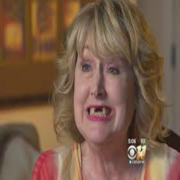 Woman Wakes Up From Minor Bladder Surgery With Front Teeth Missing