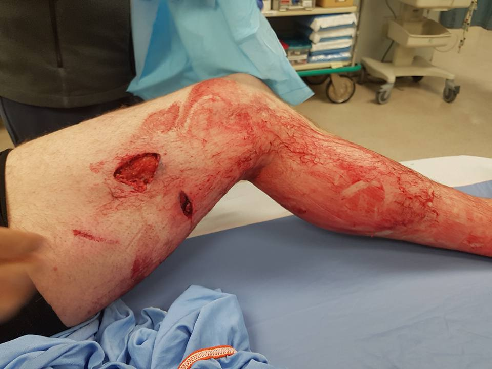 Cranbrook hunter survives grizzly bear attack in Elk Valley