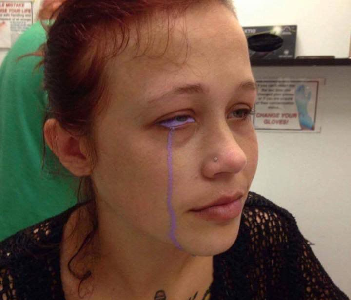 WOMAN GETS EYEBALL TATTOO---NOW SHE MAY LOSE THAT EYE