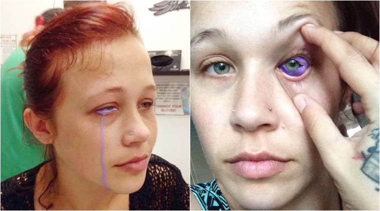 EYE SURGEONS IN ONTARIO---WANT EYEBALL TATTOOS TO BE MADE ILLEGAL