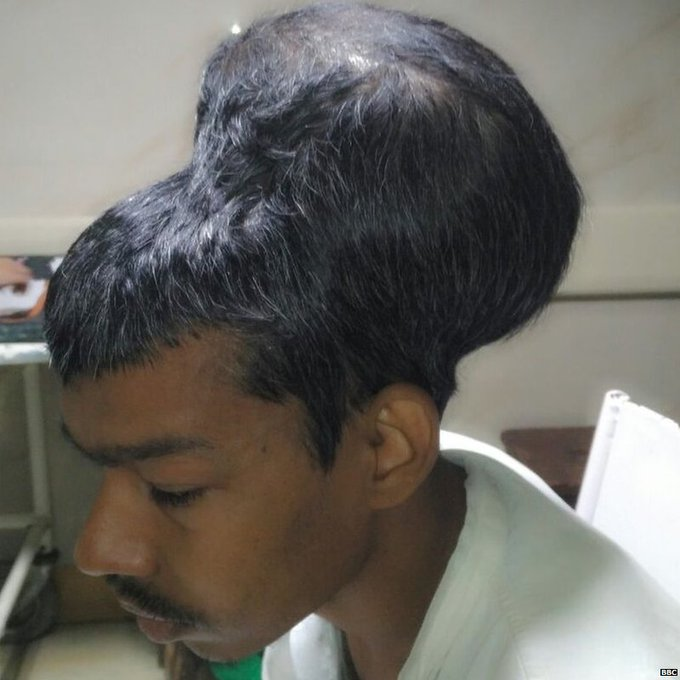 DOCTORS IN MUMBAI REMOVE WHAT THEY BELIEVE IS THE WORLD'S LARGEST BRAIN TUMOUR