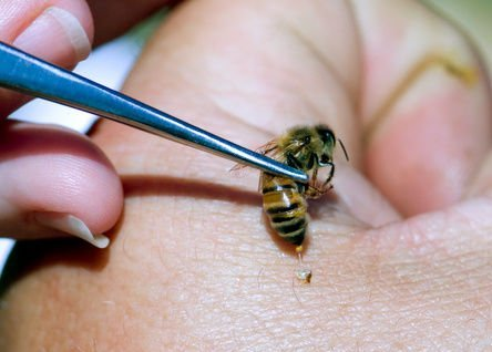 WOMAN DIES FROM SEVERE ALLERGIC REACTION FOLLOWING LIVE BEE ACUPUNCTURE SESSION